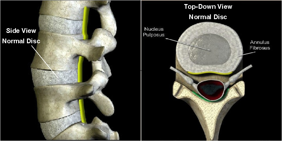 Normal, Healthy Spinal Disc